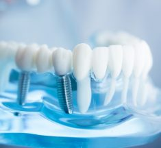 Considering Dental Implants? Ask These 6 Important Questions First